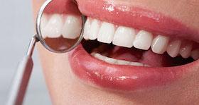 sonrisas perfectas dentistas en